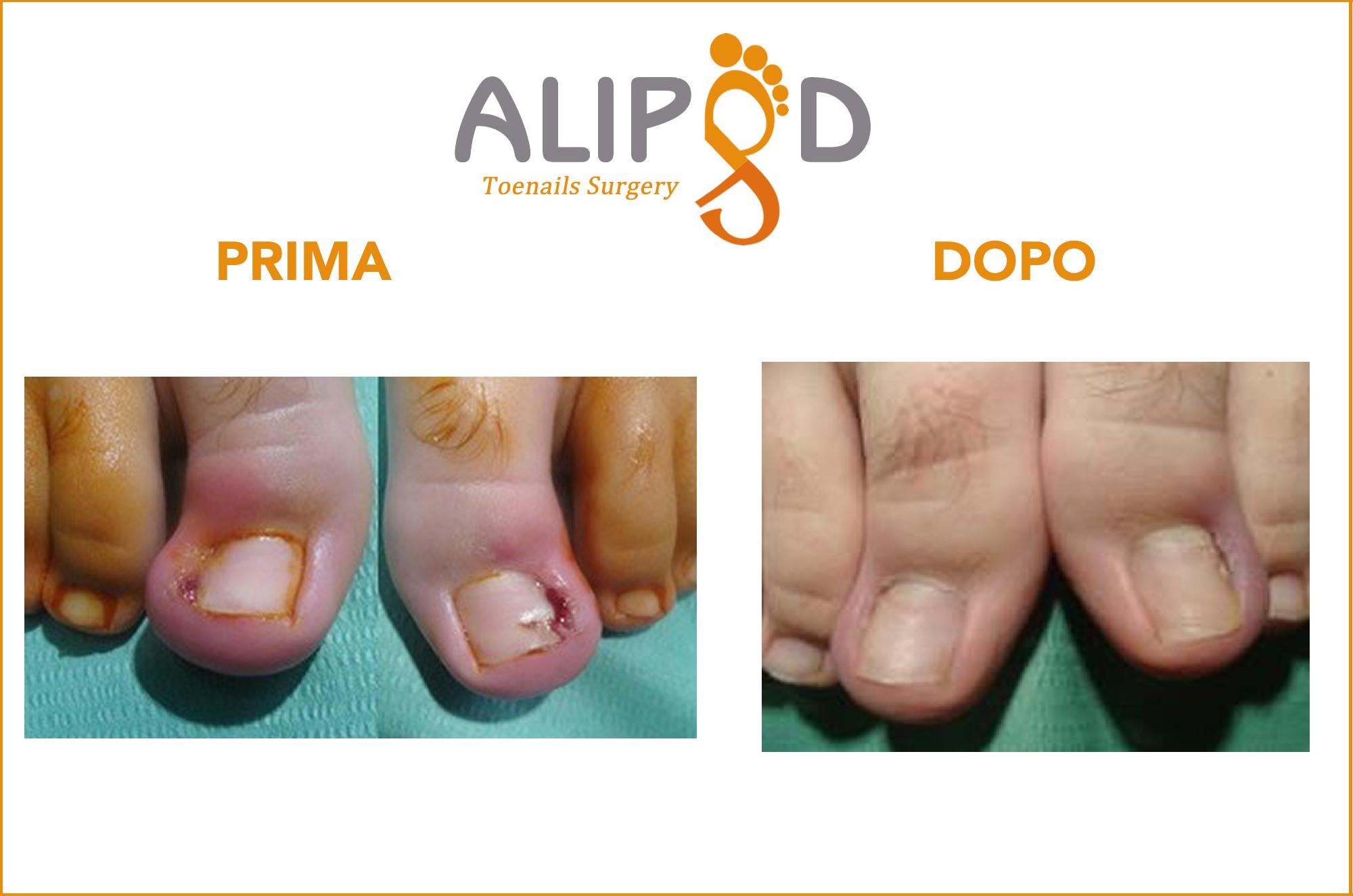 Caso clinico unghia incarnita 5
