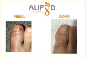 unghia incarnita prima e dopo intervento