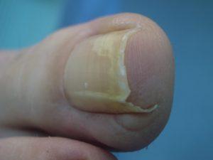 chirurgia-unghia-incarnita