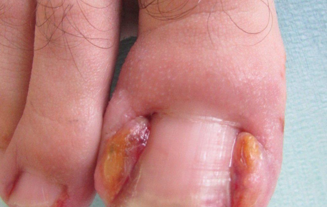 La rimozione completa dell'unghia è necessaria?